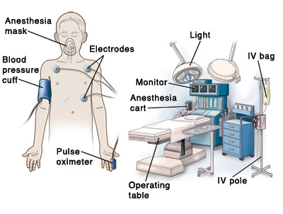 Outline of child with anesthesia mask on face, blood pressure cuff on upper arm, pulse oximeter cuff on finger, and electrodes on chest. Operating room in background shows operating table, IV pole, IV bag, anesthesia cart, monitor, and light.