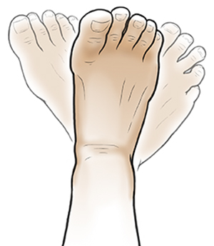 Foot with ghosted-in positions showing foot rotating.