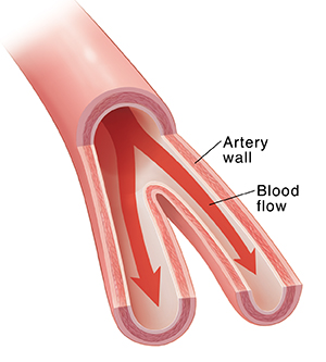 Cross section of artery showing blood flow.