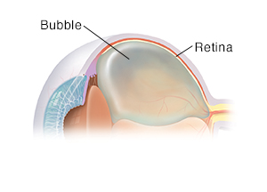 Three-quarter view of cross section of eye showing gas bubble for pneumatic retinopexy.