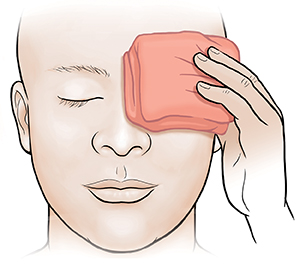 Adult holding warm compress on eye.