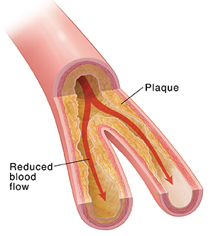 Cross section of artery showing plaque buildup and restricted blood flow.