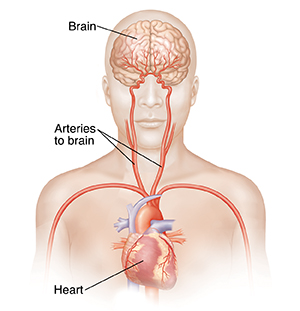 Front view of head and upper body showing carotid arteries, heart, and brain.