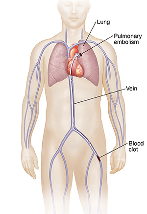 Front view of male figure with arrow showing path of blood clot from leg vein to lung, causing pulmonary embolism.