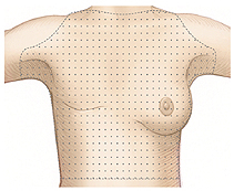 Woman's torso with shading over area to examine after mastectomy.