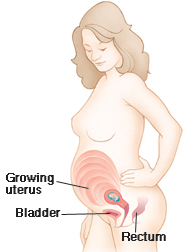 Outline of a pregnant woman showing growing uterus, bladder and rectum